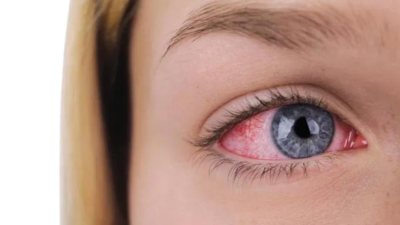 Physician Satisfaction with Anti-Inflammatory Topical Medications for the Treatment of Dry Eye Disease